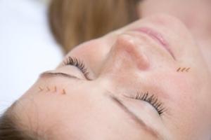 estetska akupunktura