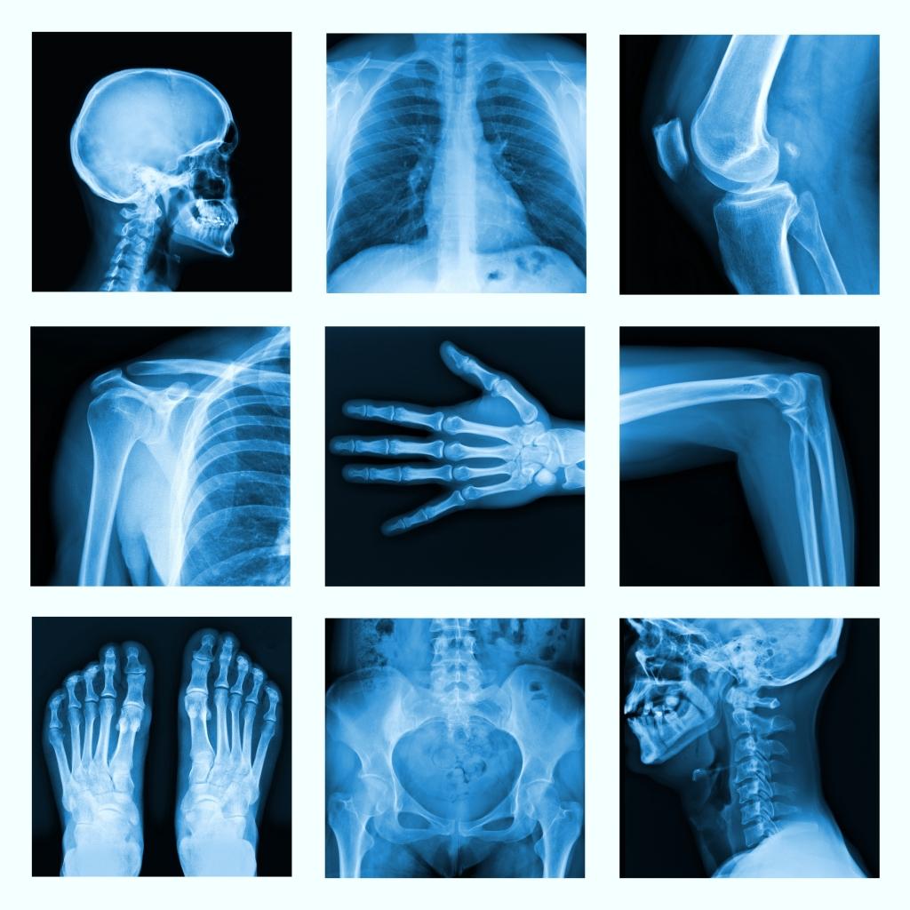 x-ray-of-bones